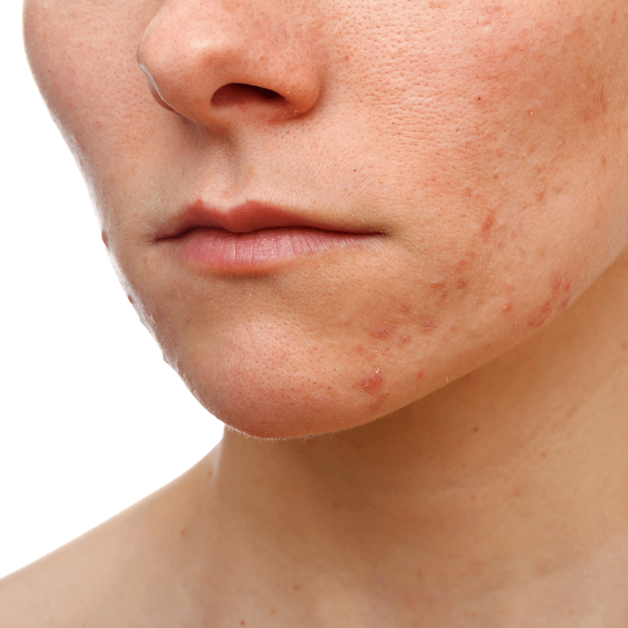 Vancouver acne laster treatment